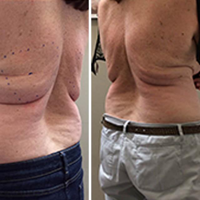 CRYO SLIM FAT FREEZING TREATMENT 2